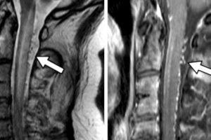 aneurisma espinhal ou malformação arteriovenosa espinhal