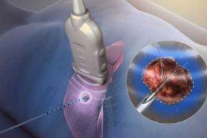 arritmia cardíaca e a terapia de ablação