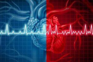 arritmia cardíaca ou ritmo cardíaco anormal