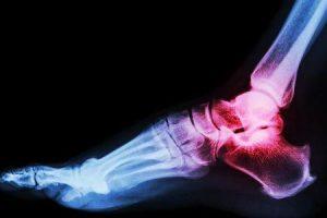 artrite da articulação do tornozelo