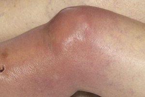artrite gonocócica ou infecção gonocócica disseminada