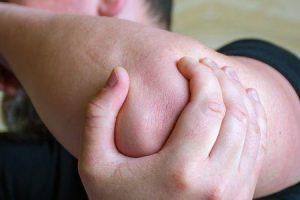 artrite psoriática do cotovelo