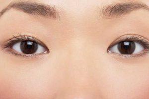 astigmatismo provoca sintomas de tipos de tratamento lentes de cirurgia refrativa