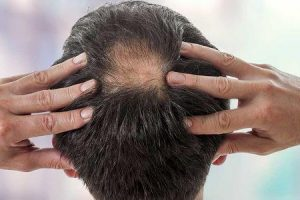 benefícios da alfafa para cabelos