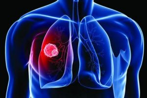 câncer de pulmão de pequenas células