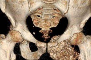 câncer nos ossos