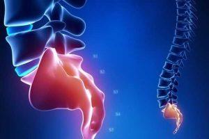 cóccix quebrado ou sintomas de cóccix quebrados causa o tratamento de analgésicos mri