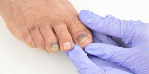 causas de que as unhas dos pés caiam e sua gestão de tratamento