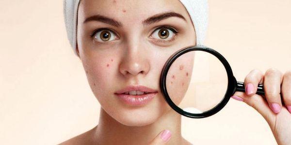 cicatrizes de acne nunca vão embora