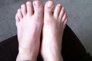 cisto do pé ou cisto do dedo do pé