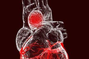 como os médicos testam para aneurisma da aorta