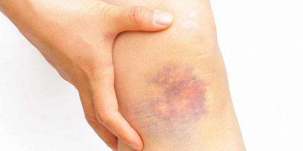 contusões na articulação do joelho