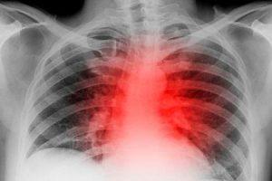coração aumentado ou cardiomegalia