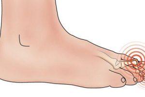 dedo do pé da garra