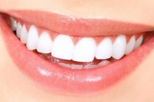 dentes branqueamento segredos para um sorriso cintilante