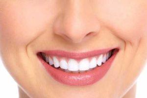 dentes sensíveis após o clareamento