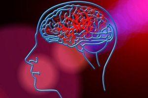 derrame vs demência