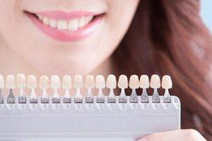 descamação dentária ou branqueamento