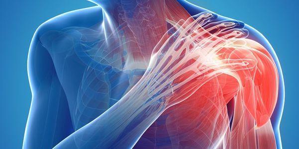 diagnóstico de dor nas articulações do ombro