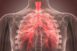 diferença entre infecção do trato respiratório superior e bronquite
