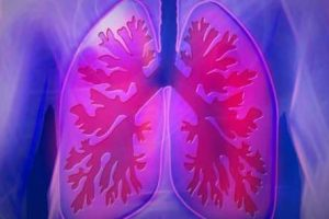 doença pulmonar ocupacional
