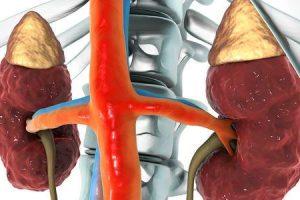 doença renal cística adquirida ackd