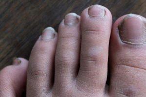 doenças e distúrbios das unhas