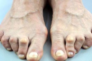 dor no dedão do pé ou dor no hálux