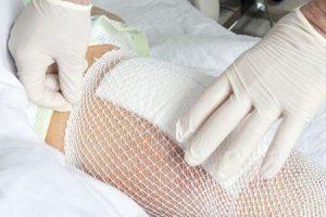 dor no quadril causada por artrite séptica da articulação do quadril provoca sintomas tratamento pt cirurgia