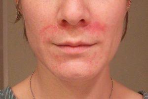 e dermatite perioral contagiosa