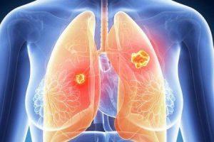 efeitos do inibidor de crizotinib ou quinase no rim