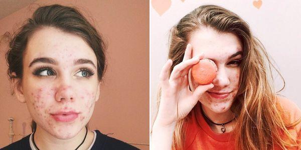 fazer pílulas de acne têm efeitos colaterais