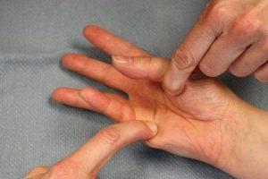 flexor digiti minimi brevis dor no pé