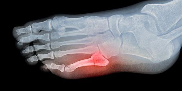 fratura fechada dos ossos dos pés