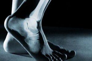 fratura por estresse do pé