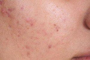 fuga de acne