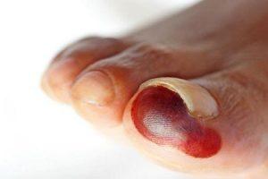 gangrena diabética porque as pessoas com diabetes gangrenam e como é tratado