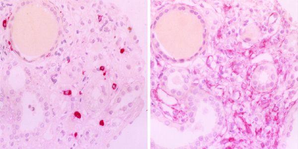 glomerulonefrite rapidamente progressiva rpgn