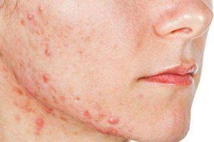 hormônios causam acne