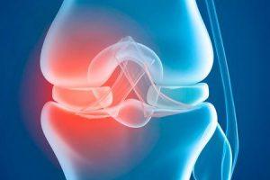 importância de manter peso saudável para o joelho artificial