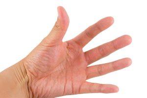 inchaço dos dedos