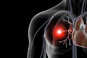 infarto pulmonar ou infarto do pulmão
