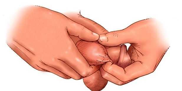 infecção testicular