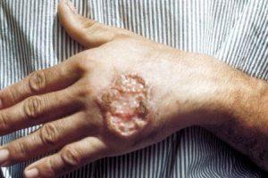 leishmaniose visceral ou calazar