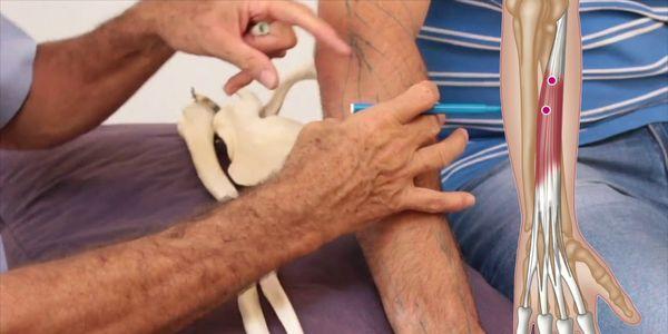 lesão do extensor indicis ou dor