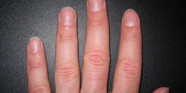 lunulae ou cor branca sob as unhas