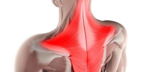 músculo trapézio lesionado