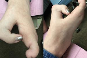 malformação da mão dividida