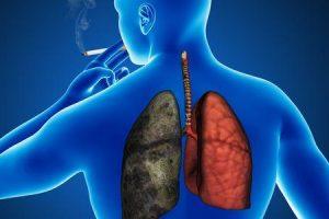 maneiras de reduzir o refluxo ácido