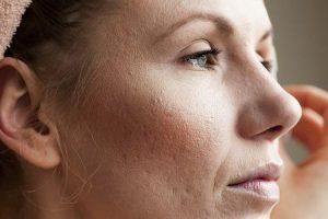maneiras rápidas de se livrar de cicatrizes de acne